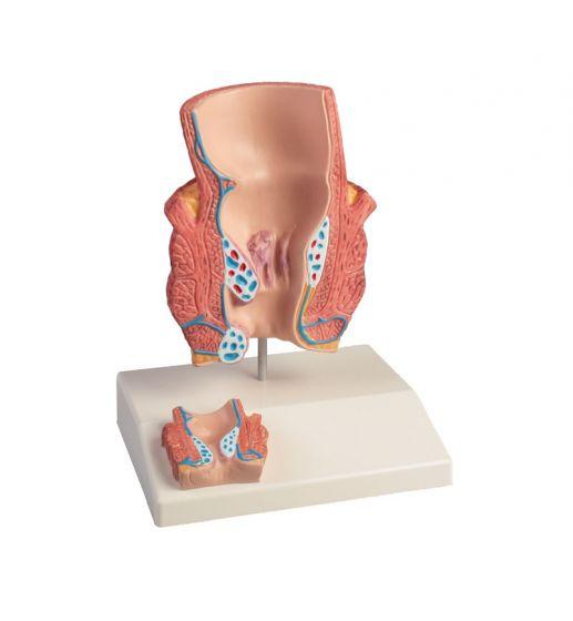 Haemorrhoid Model 2x life size Erler Zimmer