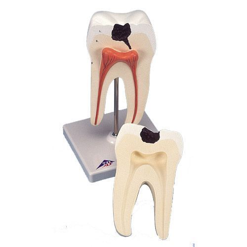 Lower Molar with double root and cavities D10/4