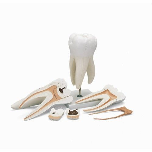 15 times Enlarged Molar with Dental Cavities D15