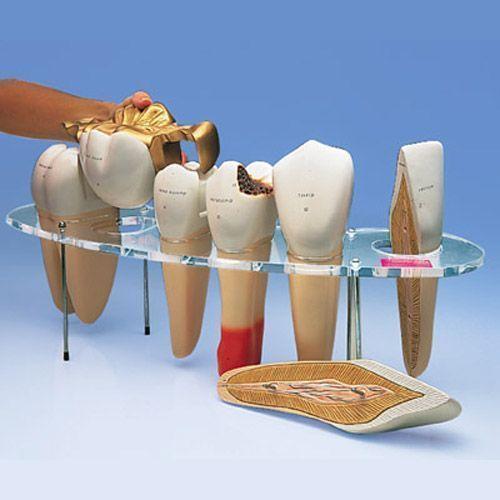 Enlarged dental prosthetics set W42529