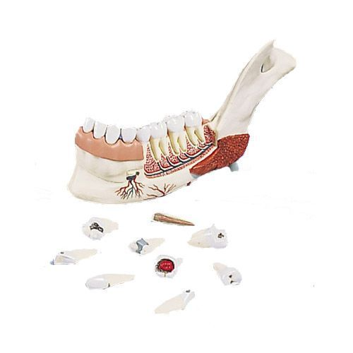 Advanced Half Lower Jaw with 8 diseased teeth 19 part VE290