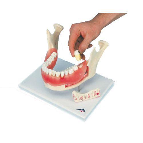 Twice enlarged diseased dental model 21 parts D26
