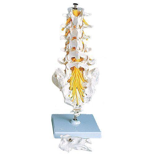 Lumbar Spinal Column A74