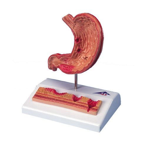Stomach with Ulcers K17