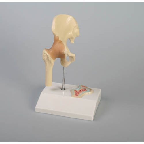 Miniature hip joint with cross section Erler Zimmer