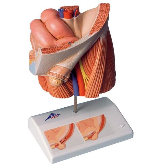 Inguinal hernia model H13